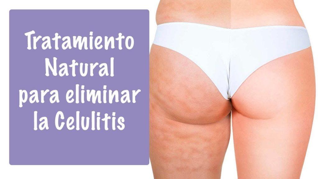 Tratamientos caseros contra la celulitis.