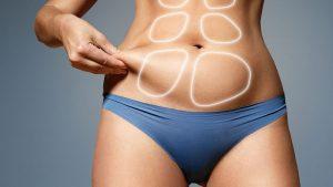 La-liposuccion-puede-tratar-la-celulitis-y-las-estrias