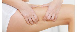 celulitis y dermatologos