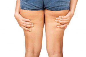 mejores tratamientos para combatir la celulitis